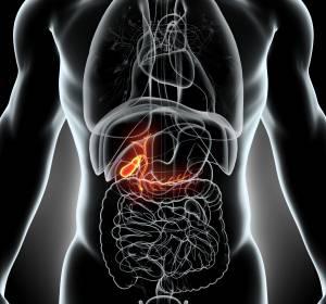Fortgeschrittenes Leberzellkarzinom: Signifikante Überlegenheit des progressionsfreien Überlebens von Cabozantinib vs. Ramucirumab