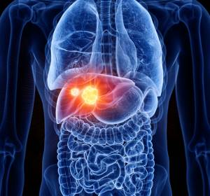 Ultraschall mit Kontrastmittel erkennt Leberkrebs zuverlässig