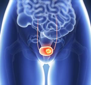Harnblasenkarzinom%2C+der+untersch%C3%A4tzte+Krebs