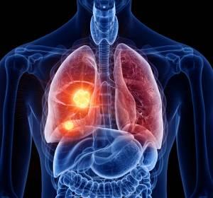 Erstlinienbehandlung des NSCLC: Neuer PD-1-Inhibitor verlängert Überleben signifikant