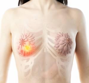 Checkpoint-Inhibition mit Atezolizumab bei triple-negativem Brustkrebs und kleinzelligem Lungenkarzinom