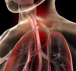 Ösophagus- und Magenkarzinom: Fortschritt durch die Immuntherapie