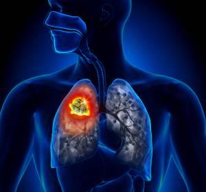 Immuntherapie bei SCLC und NSCLC: Mehr Lebenszeit bei Lungenkrebs