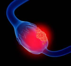 Ovarialkarzinom: Signalmolekül im Aszites für rezidivfreies Überleben