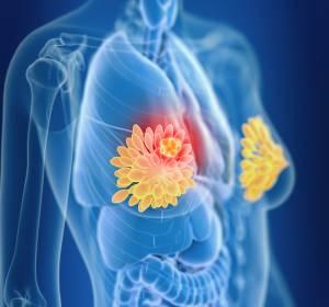 mikroRNA hemmt das Wachstum: Regulatorisches Biomolekül könnte Ansatz gegen Brustkrebs sein
