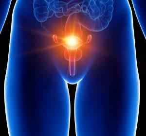 Primär fortgeschrittenes Ovarialkarzinom: Erweiterung der Erstlinien-Therapieoptionen durch PARP-Inhibition