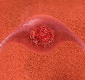 Weltkrebstag%3A+Deutsche+Krebsstiftung+setzt+sich+f%C3%BCr+HPV-Impfung+ein