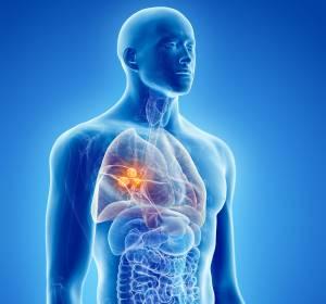 Krebsimmuntherapie sicher und wirksam als Monotherapie beim NSCLC und in der Erhaltungstherapie beim ES-SCLC