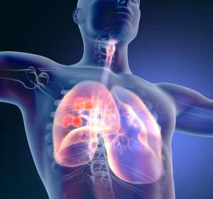 EGFRm NSCLC: Osimertinib verlängert DFS unabhängig von adjuvanter Chemotherapie