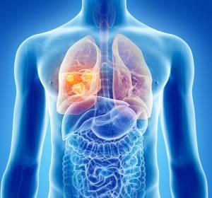 NSCLC: Neuer KRAS G12C-Inhibitor bewirkt tiefe und anhaltende Remissionen