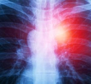 Immuntherapie beim fortgeschrittenen Mesotheliom erstmals erfolgreich