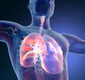 ES-SCLC: Lebensqualität als Therapieziel?