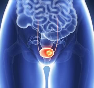 Fortgeschrittenes Urothelkarzinom: Überlebensvorteil mit Enfortumab Vedotin in Phase-III-Studie