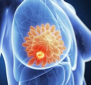 Fortgeschrittenes HER2-positives Mammakarzinom: Tucatinib überzeugt nach zweifacher Vortherapie