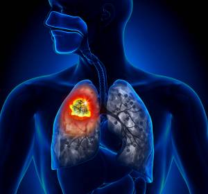 Selpercatinib+als+erster+RET-Inhibitor+zur+Therapie+des+mNSCLC+zugelassen