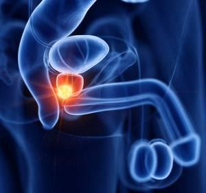 Konsultationsfassung+der+S3-Leitlinie+zum+Prostatakarzinom+online