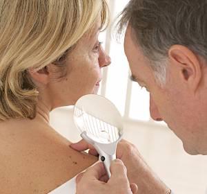 S3-Leitlinie+Hautkrebspr%C3%A4vention+aktualisiert