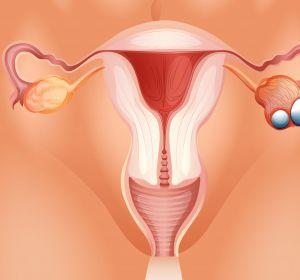 Endometriumkarzinom%3A+Bedingte+Zulassung+f%C3%BCr+Dostarlimab