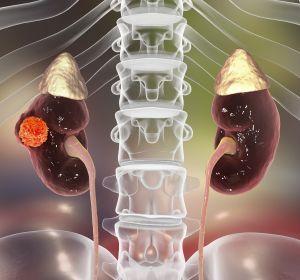 RCC%3A+Multimorbide+Patienten+profitieren+von+Tivozanib