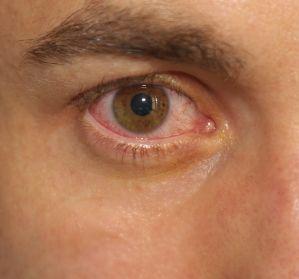 Aderhautmelanom%3A+Bewertung+neuer+Therapieoptionen+f%C3%BCr+das+uveale+Melanom