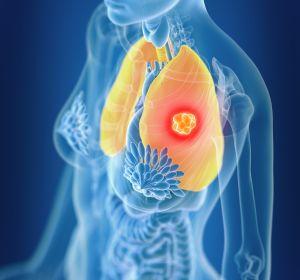 Zulassungserweiterung%3A+Erstlinien-Monotherapie+mit+Atezolizumab+beim+NSCLC+mit+hoher+PD-L1-Expression