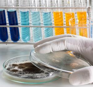 DFG%3A+Sonderforschungsbereich+zu+lebensbedrohlichen+Pilzinfektionen