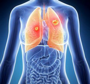 InCa-F%C3%B6rderpreis+f%C3%BCr+junge+Wissenschaftler+im+Bereich+Inflammation+%26+Lungenkrebs