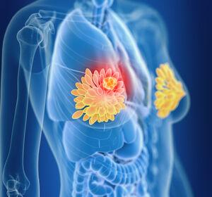 Fr%C3%BChes+Mammakarzinom%3A+Highlights+vom+ESMO+Breast+Cancer+Congress+2021