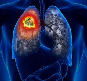 EGFR%2B+NSCLC+mit+Osimertinib-Resistenz%3A+Wirksamkeit+und+Ansprechen+von+Amivantamab+%2B+Lazertinib