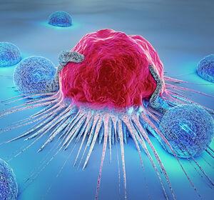 PMBCL%3A+LOH+und+EMAST+als+Pr%C3%A4diktoren+f%C3%BCr+das+Ansprechen+auf+eine+Checkpoint-Inhibitor-Therapie