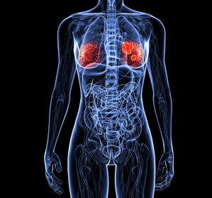 TNBC%3A+Immuncheckpoint-Inhibition+%E2%80%93+vielversprechende+Studiendaten