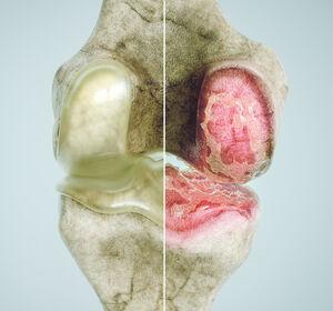 Osteoprotektion+in+der+Onkologie