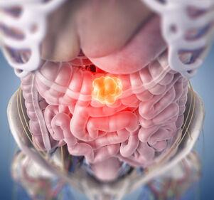 Darmkrebs%3A+Cyclin+K%2FCDK12+%E2%80%93+Neuer+Ansatzpunkt+f%C3%BCr+Therapie%3F