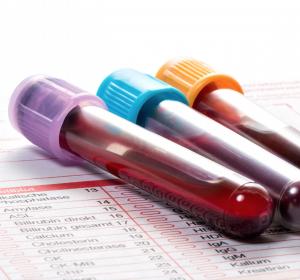 Bluttest zur Darmkrebsvorsorge in USPSTF-Empfehlungen aufgenommen