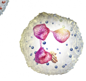 AML: Veränderung in Genen EVI1, ERG oder ZEB1 der Blutstammzellen verantwortlich für aggressiven Verlauf
