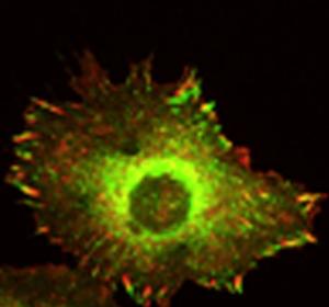 Cadherin-11 löst bei Tumorzellen Migration aus