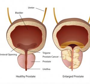 Prostatakarzinom: Zweitmalignom-Raten nach intensitätsmodulierter Bestrahlung