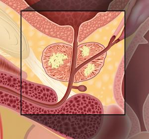 Prostatakarzinom: Zusammenhang zwischen Testosteronwerten ≤ 20 ng/dL und längerem Überleben