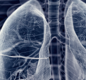 Adenokarzinom der Lunge: Vollständige molekularpathologische Analyse aus einer Probe wichtig für Therapieerfolg