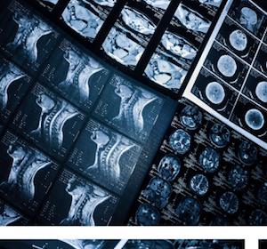 Online-Kompendium zu Strahlenmedizin und Strahlenschutz