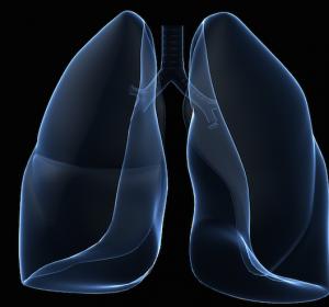 Nivolumab bei fortgeschrittenem Lungenkarzinom: Hinweis auf erheblichen Zusatznutzen