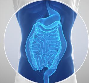 MSH3-Genmutation eine Ursache für familiäre kolorektale adenomatöse Polyposis