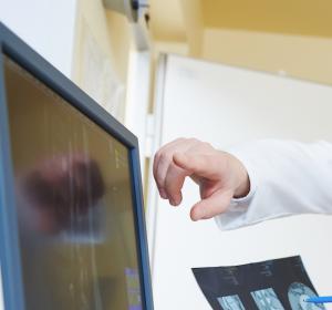 Bevacizumab-Resistenz: Mit dynamischem Monitoring früher auf Adaptation des Tumormicroenvironments reagieren