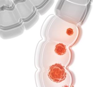 mCRC: Ansprechen auf Immuntherapie mit Atezolizumab durch Kombination mit MEK-Inhibitor Cobimetinib