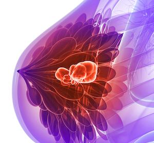 ESR1-Mutationen bei mBC mit schlechterem Outcome assoziiert