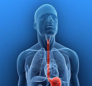 Genetische+Ursachen+bei+Barrett-%C3%96sophagus+und+Barrett-Karzinom