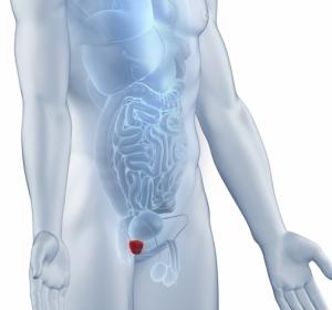 DGU-Kongress: Individuelle Behandlungsstrategien für Patienten mit metastasiertem Prostatakarzinom