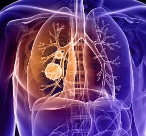 Neue Analyse bestätigt gleichbleibende Wirksamkeit von Afatinib nach verträglichkeitsbedingter Dosisanpassung bei Patienten mit fortgeschrittenem NSCLC und aktivierenden EGFR-Mutationen