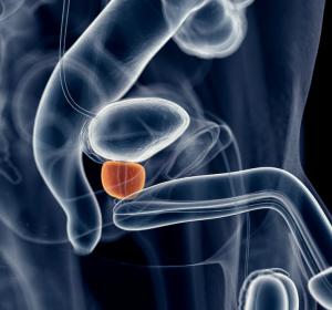 Der Europäische Prostata-Tag: Mit Forschung und Aufklärung gegen den Männerkrebs