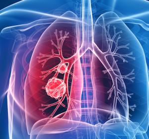 Zielgerichtete Therapie zur Behandlung von Patienten mit EGFR T790M mutationspositivem NSCLC: Kein Zusatznutzen für Osimertinib